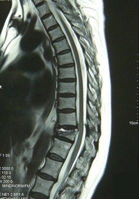 胸椎圧迫骨折MRI画像1
