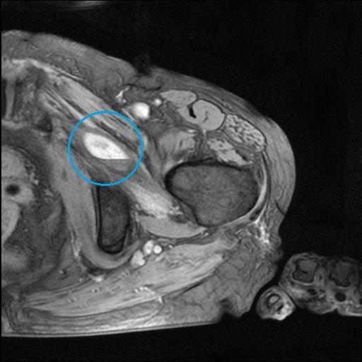 左恥骨骨折及び左閉鎖筋損傷MRI画像1