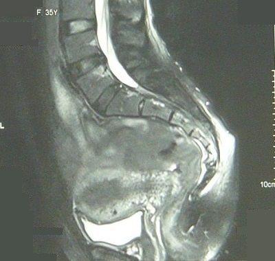 仙尾骨境界部骨折MRI画像