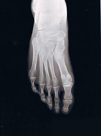 右足第4中足骨疲労骨折X線像(骨折早期)