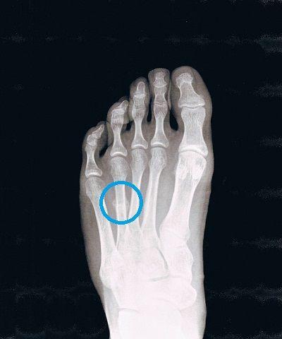 右足第4中足骨疲労骨折X線像(受傷10日後)