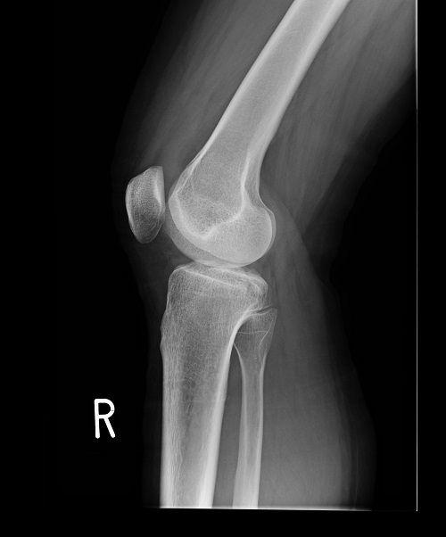 後十字靭帯の脛骨付着部剥離骨折X線像2(受傷直後)