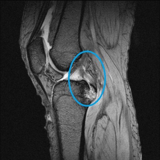 後十字靭帯の脛骨付着部剥離骨折MRI画像(受傷直後)