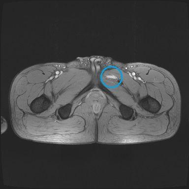 股関節内側の内転筋または恥骨筋筋断裂 MRI画像2