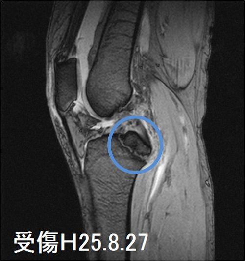 右脛骨高原骨折MRI画像(受傷直後)
