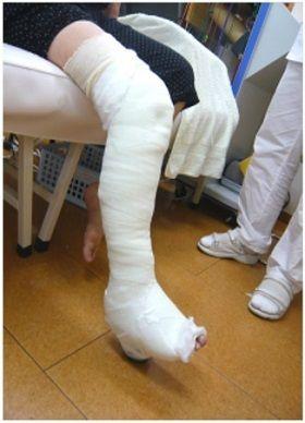 右脛骨高原骨折PTBギプス固定画像(受傷4週経過)