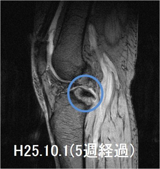 右脛骨高原骨折MRI画像(受傷5週経過)