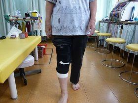 右脛骨高原骨折機能訓練画像(受傷後7週経過)