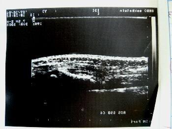 小児の不安定(整復困難)な前腕骨両骨骨折 超音波画像(受傷直後)