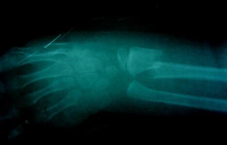 小児の不安定(整復困難)な前腕骨両骨骨折 X線像1(受傷直後)