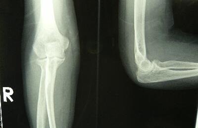 右橈骨頭骨折 X線像