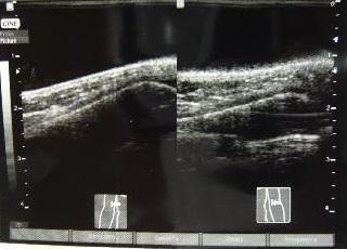 初診時超音波画像2