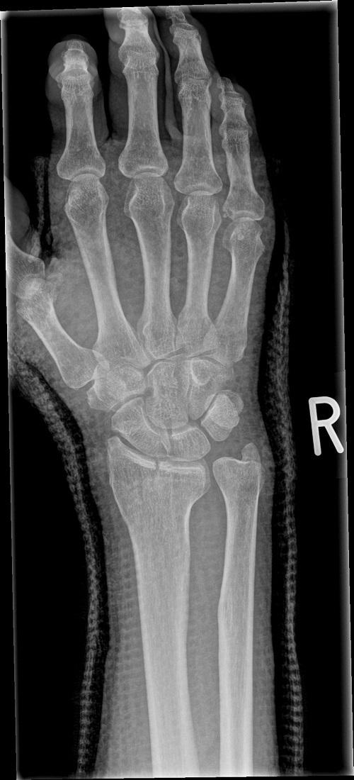 受傷直後X線像