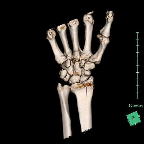 受傷直後CT画像3