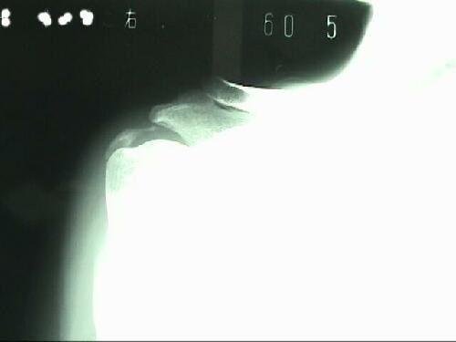 石灰沈着性腱板炎X線像1