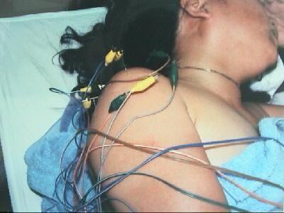 鍼破潰法による鍼通電刺激療法