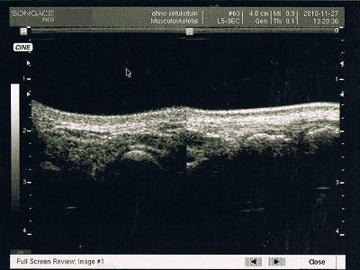 舟状骨骨折超音波画像