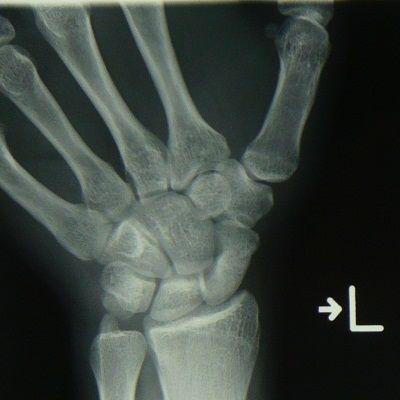 舟状骨骨折X線像1