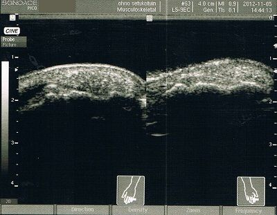 左手第3指末節骨骨折拘縮後療超音波画像1