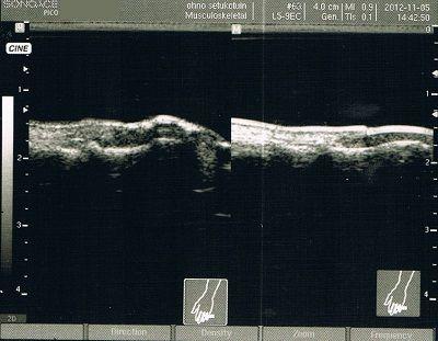 左手第3指末節骨骨折拘縮後療超音波画像2