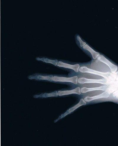 左手第3指末節骨骨折拘縮後療X線像1