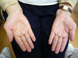 手根管症候群症例画像1