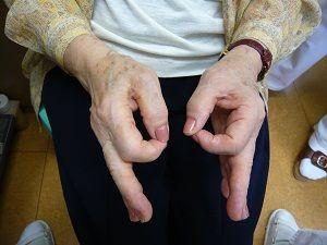 手根管症候群症例画像2