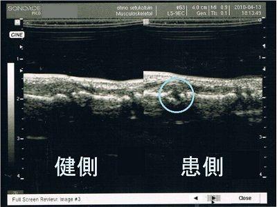 左第5指基節骨骨折超音波画像