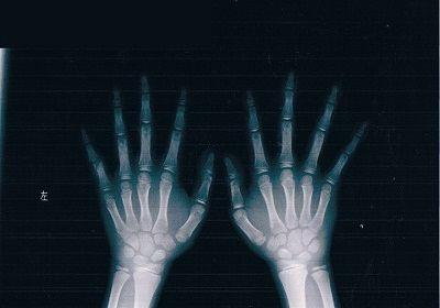 左第5指基節骨骨折X線像1