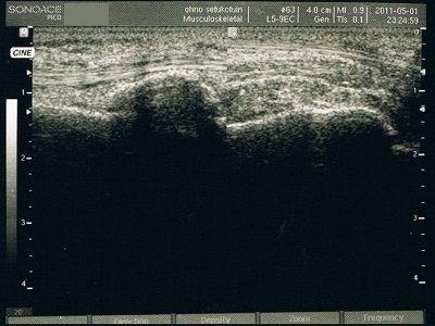 超音波画像(受傷直後)