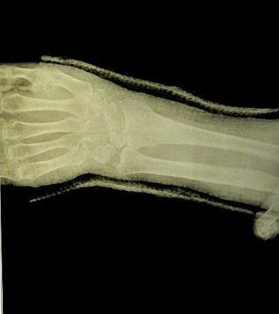 右橈骨遠位端骨折X線像(応急処置後)