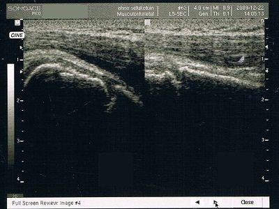 右肩甲骨多発骨折及び上腕骨大結節剥離骨折 超音波画像